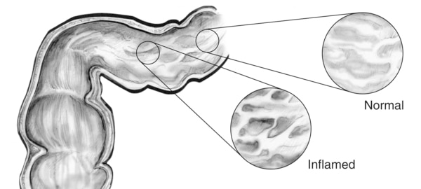 Drawing of the lining of the GI tract. An inset image shows normal tissue and another inset image shows inflamed tissue.