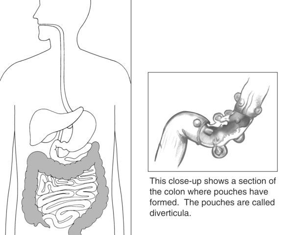 Drawing of digestive tract with the colon highlighted. Next to it is a close-up section of the colon with diverticula, or pouches.