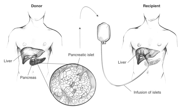 Drawing of two body torsos showing the infusion of islets extracted from a donor pancreas into a transplant recipient.