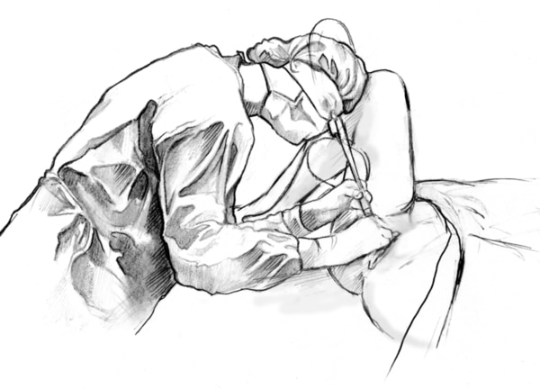 Drawing of a doctor performing a cystoscopic examination of a female patient.