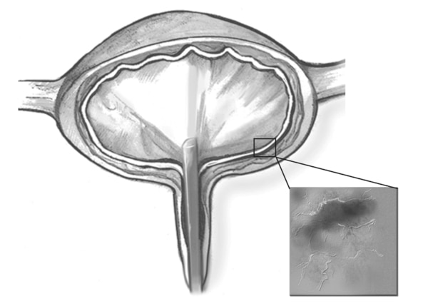Drawing of cystoscope in the bladder.