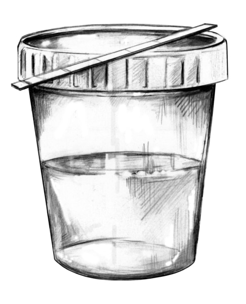 Drawing of a urine sample in a cup and a dipstick for testing the protein content of the urine.