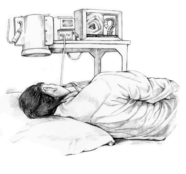 Drawing of a colonoscopy patient.