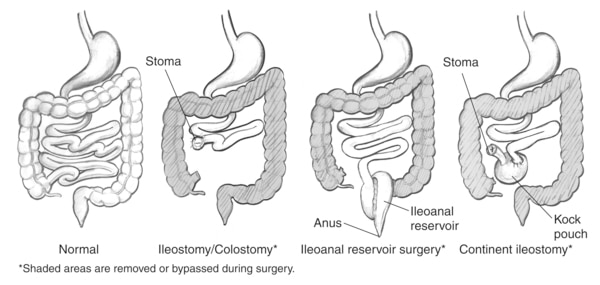 Drawings of a normal bowel and three types of bowel diversion surgeries, including ileostomy/colostomy, ileoanal reservoir, and continent ileostomy. The normal bowel drawing shows the stomach, small intestine, and large intestine. The ileostomy/colostomy drawing shows the stomach and a shortened small intestine that ends at a stoma. It also shows the large intestine, which is shaded to indicate it has been removed or bypassed during surgery. The stoma is labeled. The ileoanal reservoir surgery drawing shows the stomach and a shortened small intestine whose end has been turned into an ileoanal reservoir. It also shows the large intestine, which has been shaded to indicate it has been removed or bypassed during surgery. The anus and ileoanal reservoir are labeled. The continent ileostomy drawing shows the stomach and a shortened small intestine whose end has been turned into a Kock pouch. It also shows the large intestine, which is shaded to indicate it has been removed or bypassed during surgery. A short segment of bowel protrudes from the Kock pouch and ends at a stoma. The Kock pouch and stoma are labeled.