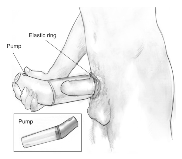 Drawing of a vacuum device placed around the penis to treat erectile dysfunction. Labels point to the pump, which draws air out of the cylinder, and an elastic ring, which, when fitted over the base of the penis, traps the blood and sustains the erection