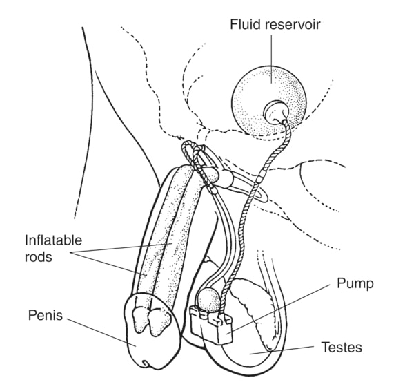 Drawing of an inflatable penile implant to treat erectile dysfunction. An erection is produced by squeezing a small pump implanted in the scrotum. The pump causes fluid to flow from a reservoir in the lower pelvis to two inflatable rods in the penis. The