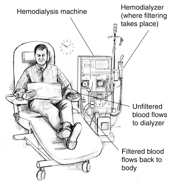Drawing of a man receiving hemodialysis treatment. Labels point to the hemodialyzer, where filtering takes place; hemodialysis machine; a tube where unfiltered blood flows to the dialyzer; and a tube where filtered blood flows back to the patient's body.