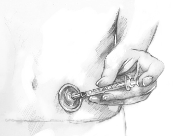 Drawing of a person injecting insulin with a needle and syringe through an injection port attached to the abdomen. The port has a round adhesive patch covering a cannula inserted under the skin.