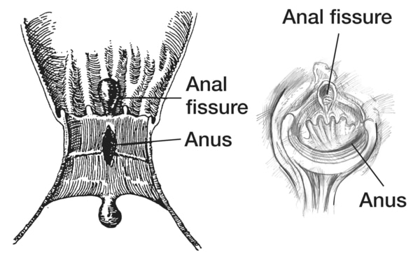 Left: drawing of a cross section of the anus with a fissure. Right: drawing of a direct view of the anus with a fissure.