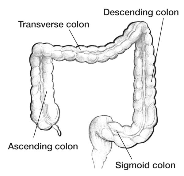 Drawing of the colon with the ascending colon, transverse colon, descending colon, and sigmoid colon labeled.