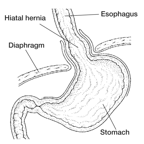 Drawing of a hiatal hernia with the esophagus, diaphragm, stomach, and hiatal hernia labeled.