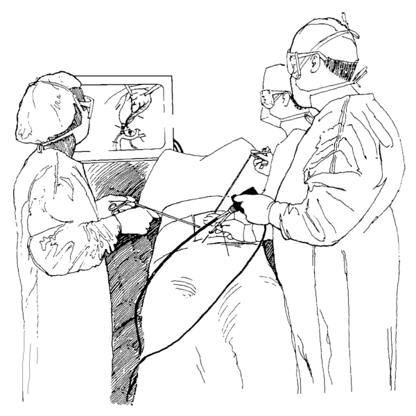 Drawing of laparoscopic cholecystectomy to remove the gallbladder. A surgeon and assistants are shown holding the laparoscope and viewing the procedure on a monitor.