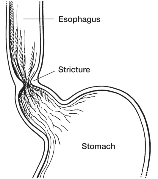 Drawing of a stricture, or narrowing, of the esophagus with the esophagus, stricture, and stomach labeled.