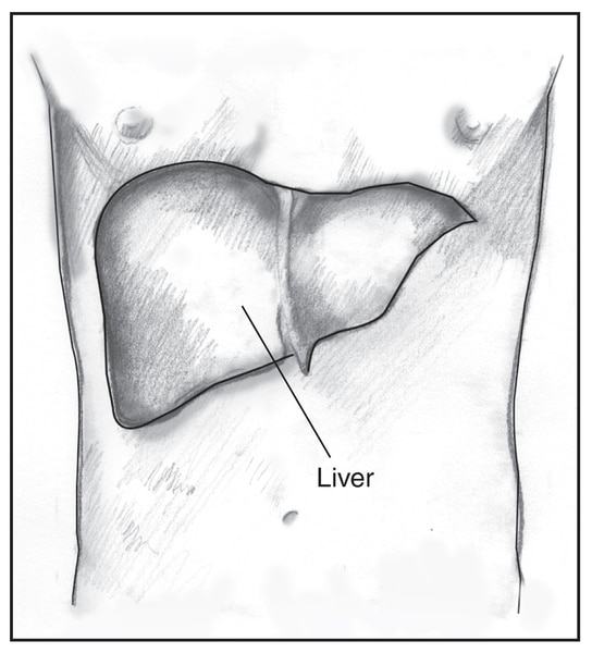 Drawing of a male torso with the liver highlighted and labeled.