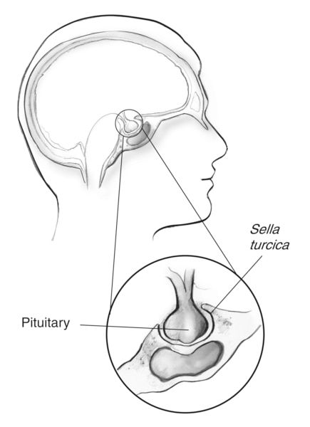 Drawing of the outline of a human head showing the location of the   pituitary gland just beneath the brain. An inset shows the pituitary gland sitting in   the sella turcica, an area of bone that surrounds the pituitary gland.