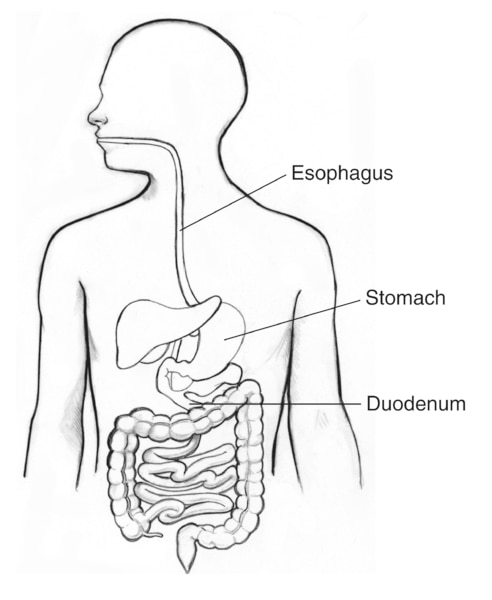 Drawing of the digestive tract with the esophagus, stomach, and duodenum labeled.