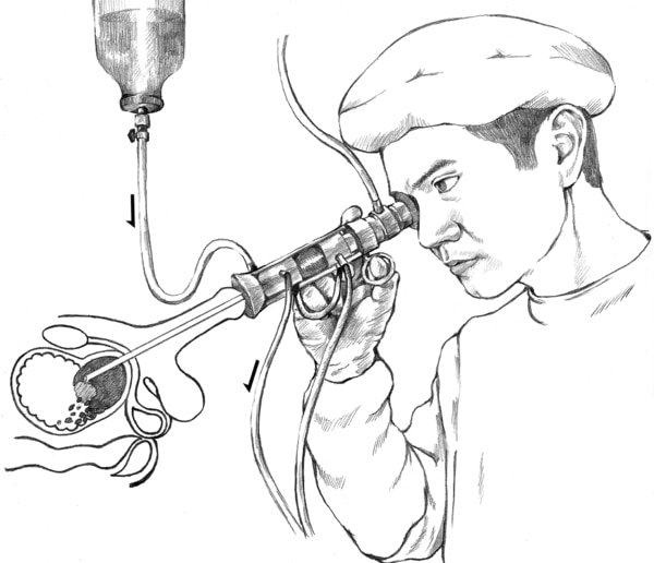 Drawing of a doctor performing a transurethral resection of the prostate. An inset shows a microscopic view of a wire loop cutting tissue from the prostate.