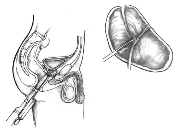Drawing of a transrectal ultrasound with prostate biopsy, showing a needle and needle guide inserted in the rectum. The bladder, transducer, and needle guide are labeled. Inset of enlarged view of prostate with needle inserted.