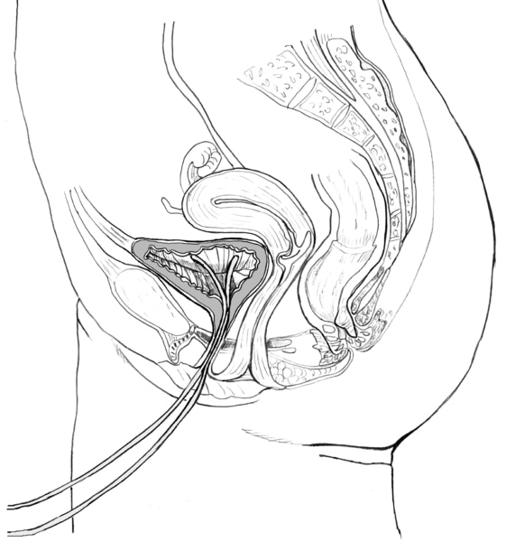 Drawing of the side view of the male urinary tract with a catheter inserted through the urethra to the bladder.