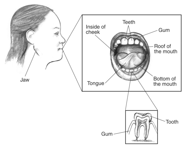 Drawing of the profile of a woman's face with the jaw labeled. Inset of the mouth with the teeth, gum, roof of the mouth, bottom of the mouth, tongue, and inside of cheek labeled. A second inset of a tooth with the tooth and gum labeled.