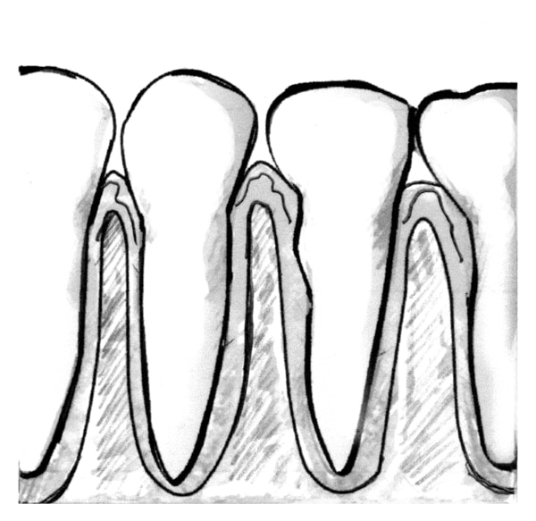 Drawing of a close-up view of teeth and healthy gums.