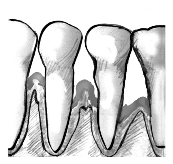 Drawing of a close-up view of teeth and gums with periodontitis.