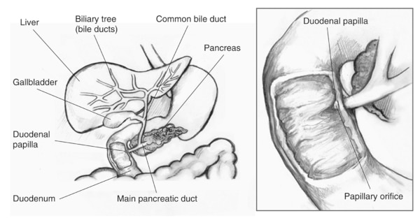 Drawing of the biliary system with the liver, biliary tree (bile ducts), common bile duct, gallbladder, pancreas, duodenal papilla, main pancreatic duct, and duodenum labeled. Inset of an enlarged biliary system with the duodenal papilla and papillary ori