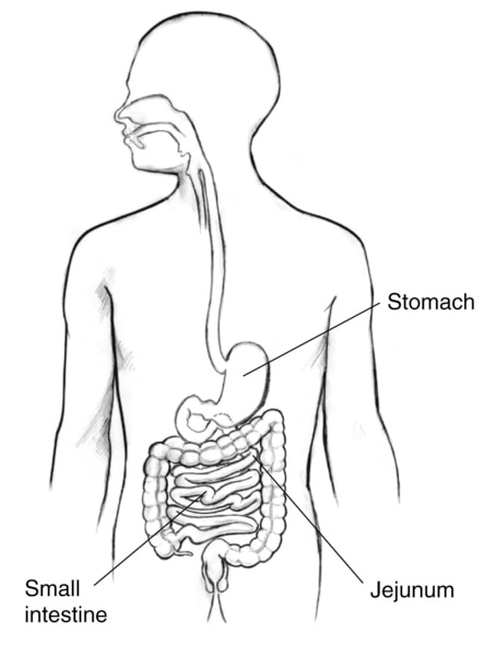 Drawing of the digestive tract with the stomach, small intestine, and jejunum labeled.