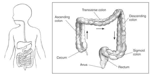 Drawing of the lower gastrointestinal tract inside the outline of a man's torso with an inset that includes labels for cecum, ascending colon, transverse colon, descending colon, sigmoid colon, rectum, and anus