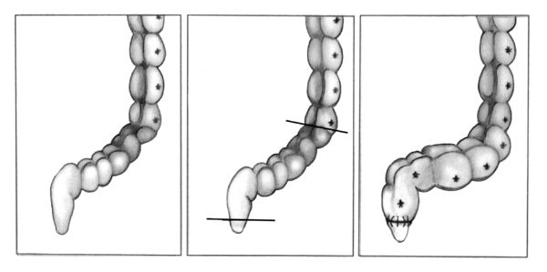 Drawing of part of the large intestine before and after a pull-through procedure.
