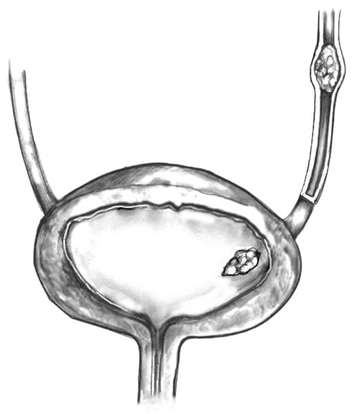 Drawing of cross section of the bladder with a stone.
