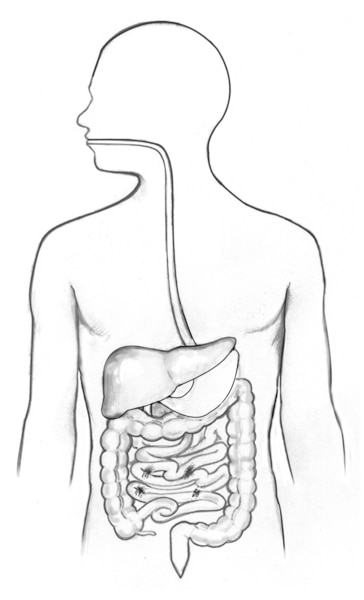 Drawing of the gastrointestinal tract showing the esophagus, stomach, and large intestine.
