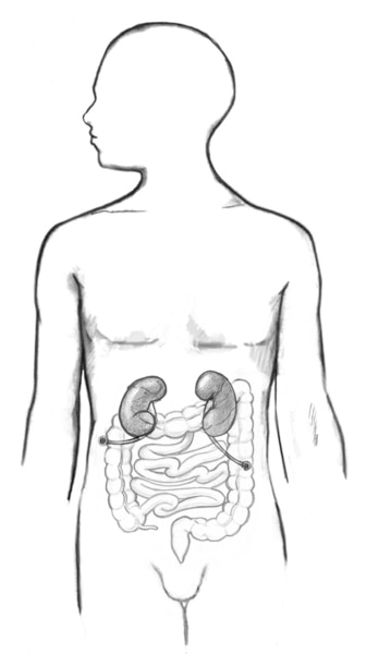 Drawing of a cutaneous ureterostomy.