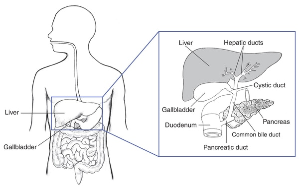 Drawing of the biliary system, with the liver, gallbladder, duodenum, pancreatic duct, common bile duct, pancreas, cystic duct, and hepatic ducts labeled.