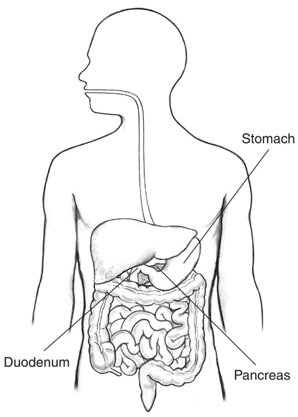 Drawing of the digestive tract within an outline of the top half of a human body. The stomach, pancreas, and duodenum are labeled.