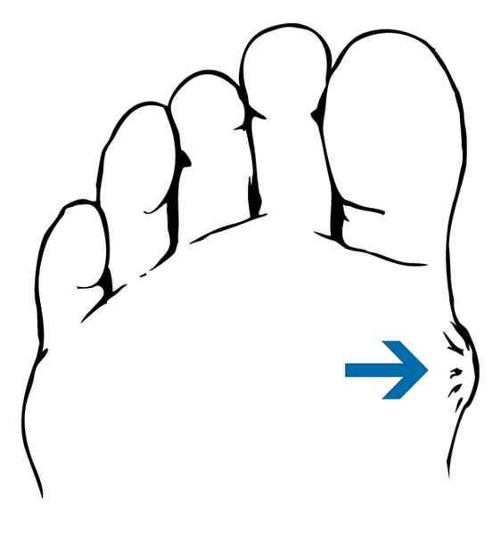 Drawing of a foot with a blister.