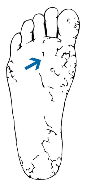 Drawing of a foot with dry and cracked skin.