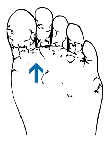 Drawing of a foot with athlete's foot.