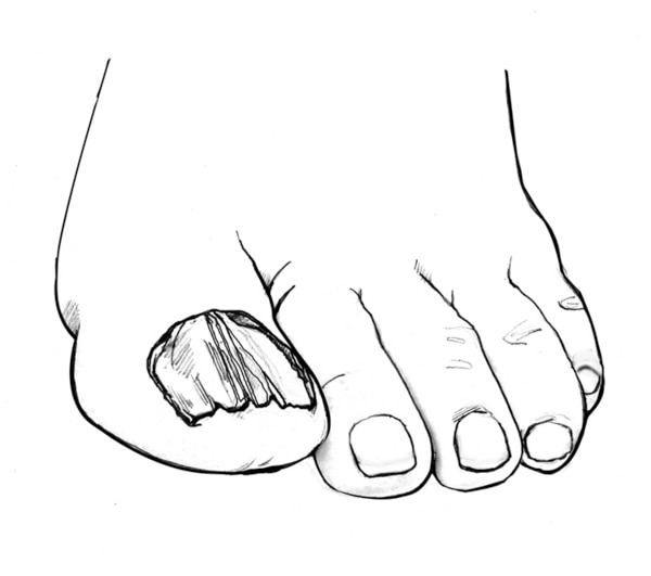 Drawing of a foot with a fungal infection on a toenail.