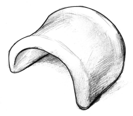 Drawing of a pessary device.