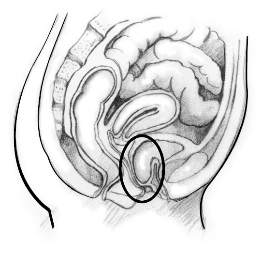 Drawing of a woman's pelvic area.