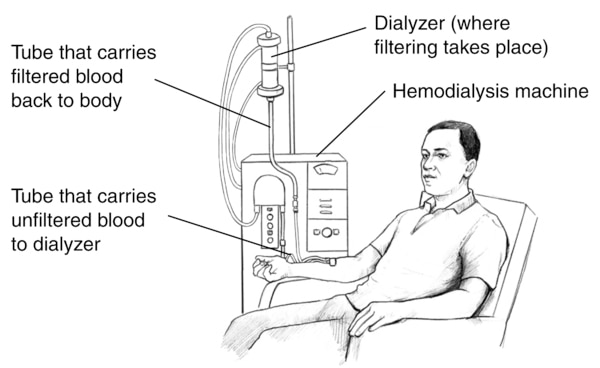 Drawing of a man receiving hemodialysis treatment. Labels point to the dialyzer, where filtering takes place; hemodialysis machine; a tube that carries filtered blood back to body and tube that carries unfiltered blood to dialyzer.
