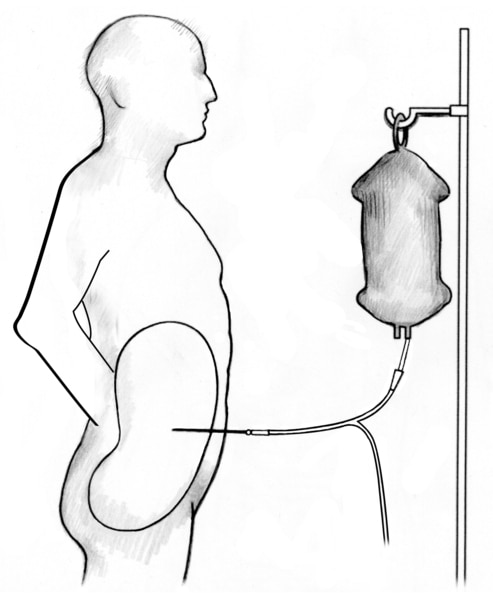 Outline of a male figure receiving peritoneal dialysis.