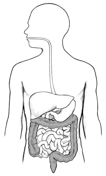 Drawing of the digestive tract within an outline of the human body. The stomach, small intestine, large intestine, rectum, and anus not labeled.