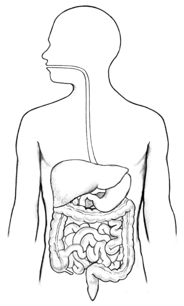 Drawing of the digestive tract within an outline of the human body. The mouth, esophagus, stomach, duodenum, small intestine, and anus not labeled.