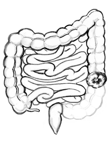 Drawing of the colon with a portion of the descending colon missing and remaining colon diverted to a stoma.