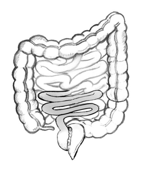 Drawing of an ileoanal reservoir with the anus, ileum, removed colon, and ileoanal reservoir.
