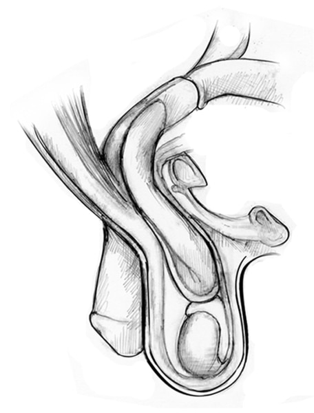 Drawing of an inguinal hernia with the small intestine, internal inguinal ring, external inguinal ring, pubic bone, penis, spermatic cord, and testes.