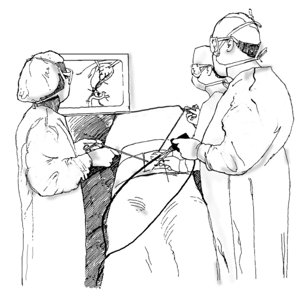 Drawing of laparoscopic cholecystectomy. A surgeon and assistants hold the laparoscope and view the procedure on a monitor.
