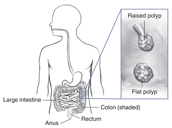 Drawing of the digestive tract within outline of a male body, with labels pointing to the large intestine, colon (shaded), rectum, and anus. Inset shows a section of colon with a raised and a flat polyp